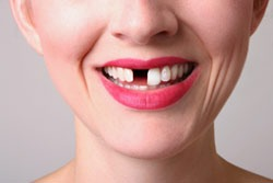 אישה עם שן חסרה