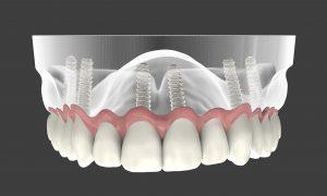 השתלת שיניים במצב חוסר קיצוני בנפח עצם
